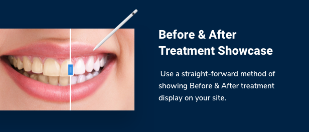 SmilePure - Thème WordPress pour soins dentaires et médicaux - 8
